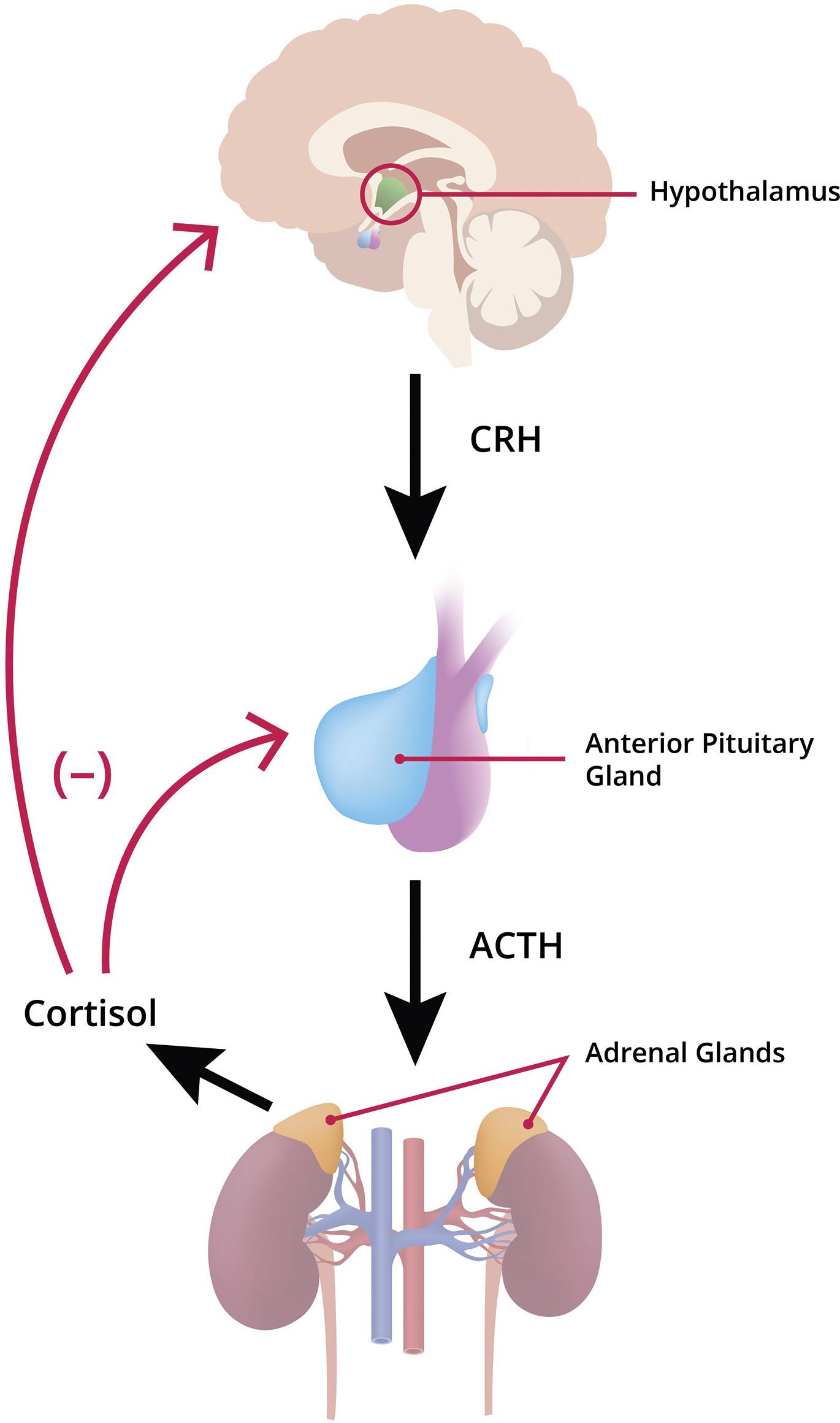 Neonatal Cushing Syndrome - Clinics in Perinatology