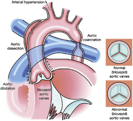 Aortic Stenosis In Children: Clinics In Perinatology